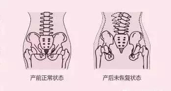【盆腔修复】女性由于怀孕生育等原因导致盆腔张开,产后恢复的重