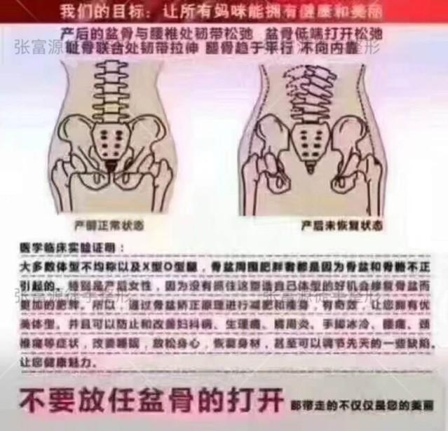 这张图解释了为什么要做产后盆骨修?生完孩子骨盆会被撑大,随之